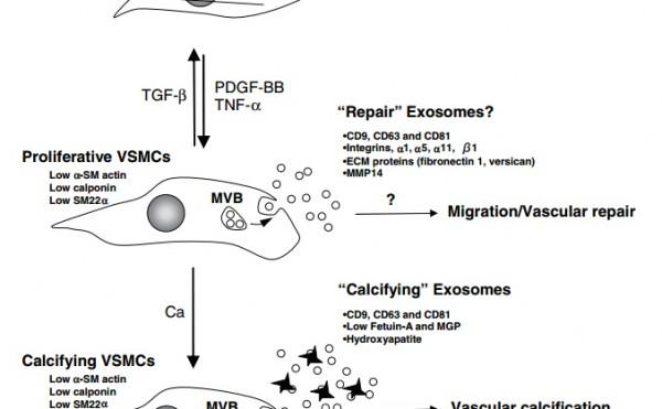 Circ Res: 血管平滑肌细胞的钙化是通过调节外泌体分泌介导的