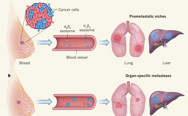 Nature:外泌体整合素分子决定了肿瘤转移的器官倾向性