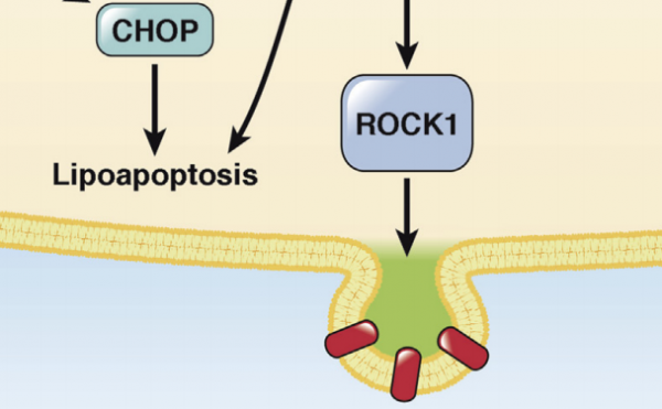 Gastroenterology:非酒精性脂肪肝炎 高脂饮食使肝脏分泌炎性细胞外膜泡