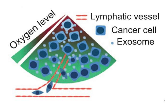 Cancer Research: 缺氧口腔鳞状细胞癌来源的外泌体促进常氧细胞转移