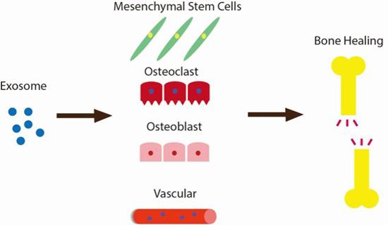 外泌体:促进骨再生的新方法