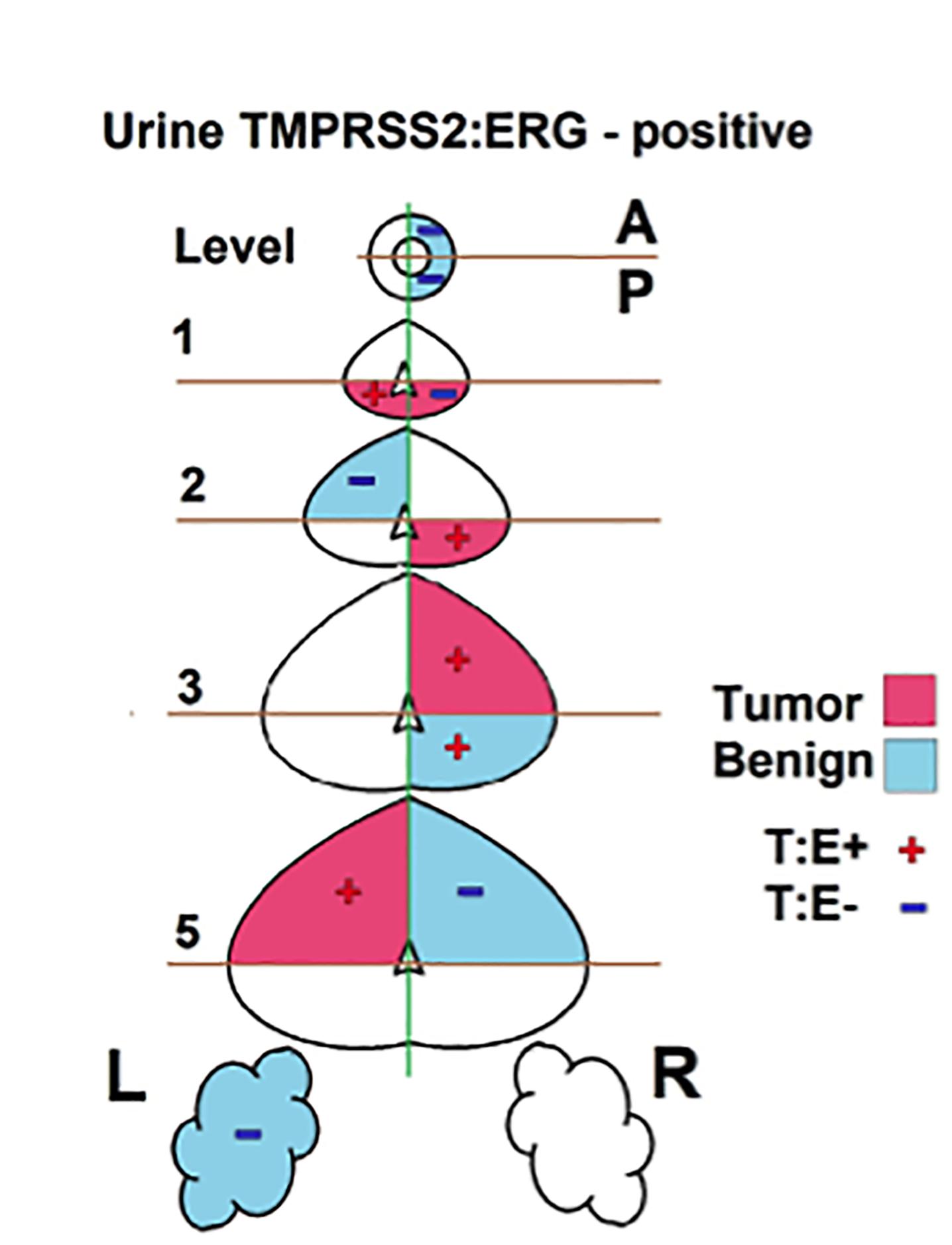 尿液外泌体可对前列腺癌进行非侵入性评价