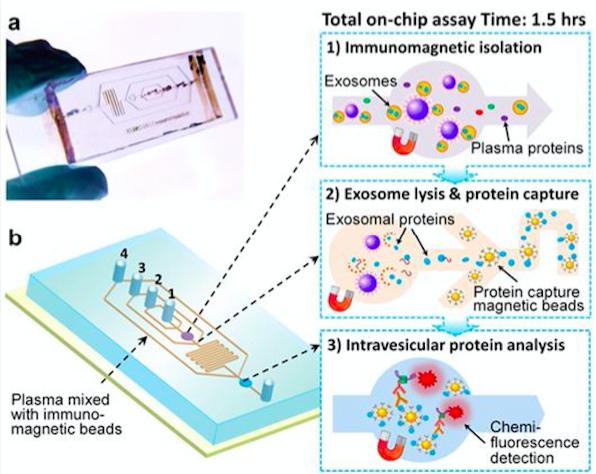 肿瘤液体活检新方法——微流体外泌体分析