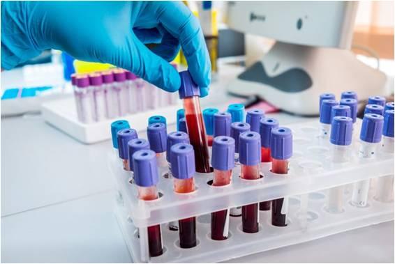 快速微创血液外泌体测试或可更早检测乳腺癌|内附视频介绍