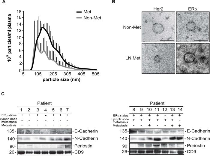 乳腺癌外泌体中的骨膜蛋白可作为癌转移生物标记物