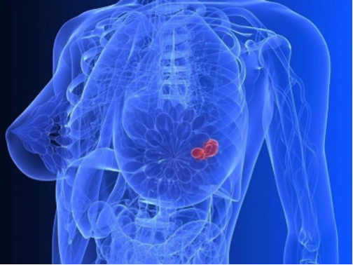 哈佛大学波士顿儿童医院:含miR-200的细胞外膜泡促进乳腺癌的转移