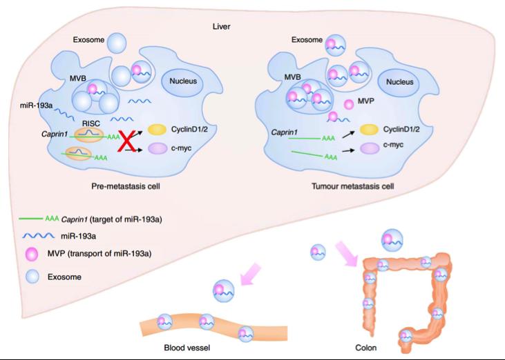 外泌体做了垃圾桶?肿瘤细胞为了生长通过外泌体抛弃抑制肿瘤发展的miR-193a