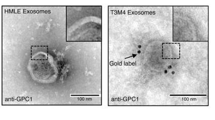 protocol丨外泌体免疫胶体金电镜经验分享