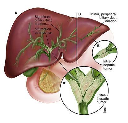 Gastroenterology:胆汁中的细胞外囊泡可作为恶性胆管狭窄的标记物