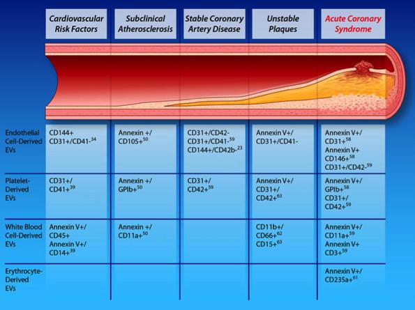 【综述】细胞外囊泡在心血管疾病中的应用:诊断、预后和流行病学
