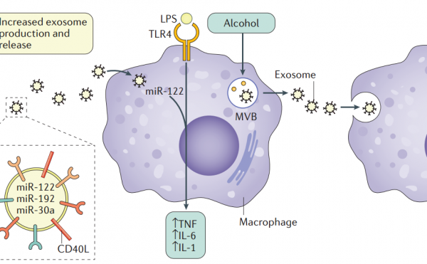 【综述】Nature子刊:肝脏疾病中的细胞外膜泡及其作为生物标志物和治疗靶标的潜能