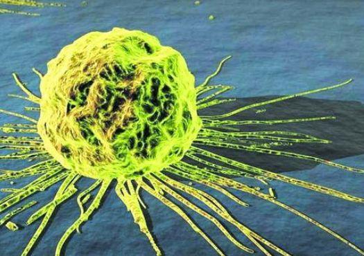 【Theranostics】NK细胞外泌体具有杀伤黑色素瘤的作用
