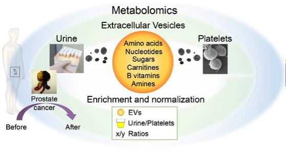 外泌体诊断新成分 | 胞外膜泡的代谢组学分析可用于探究前列腺癌相关变化