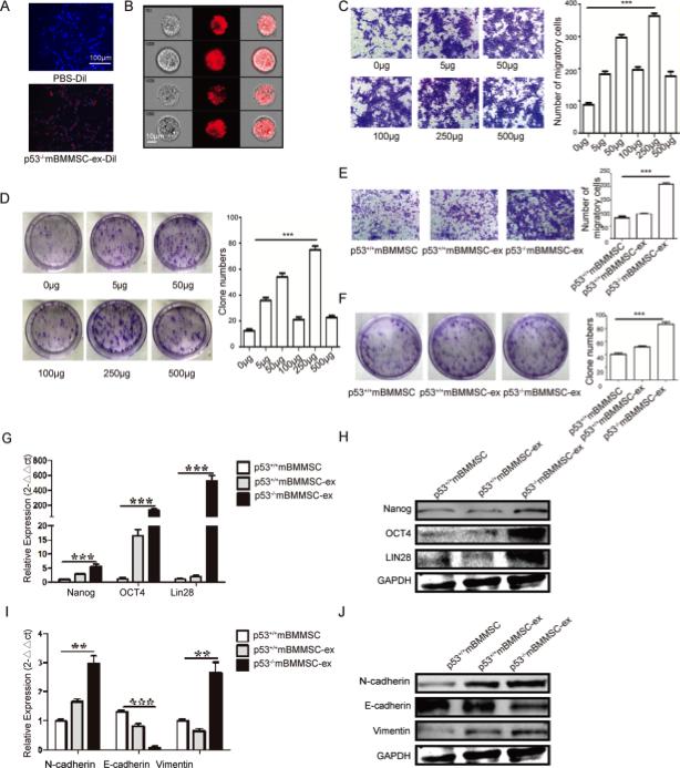 江苏大学钱晖、许文荣团队又出新作:p53缺失的小鼠骨髓MSC外泌体富含UBR2通过Wnt/β-Catenin途径胃癌的进展