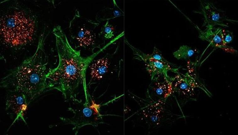 【Nature Methods】瑞士洛桑联邦理工学院研究人员开发出一种利用外泌体加强免疫系统识别和攻击肿瘤的有效方法