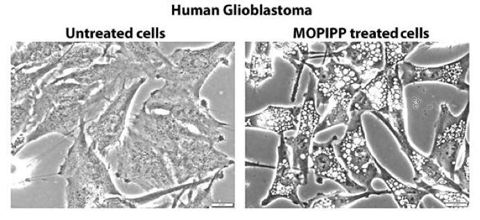 癌症研究人员专注探索外泌体这种细胞间沟通交流的方式