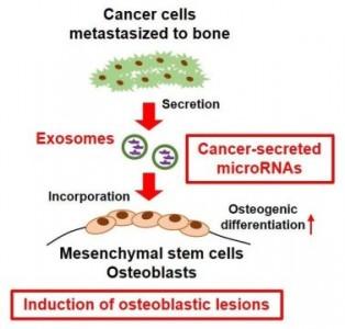 PNAS:肿瘤外泌体miR-940促进肿瘤微环境中的成骨表型