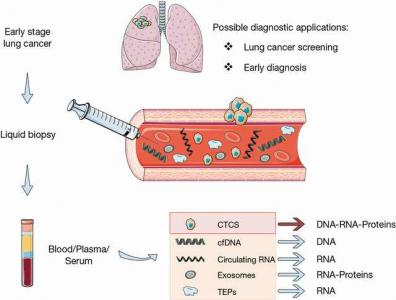 【综述】用于肺癌早期检测的液体活检目前研究现状