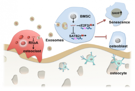 Aging Cell:南京医科大学发现衰老相关的骨髓微环境中外泌体miR-31a-5p调节骨形成和骨吸收
