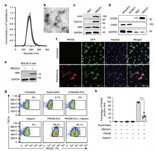 【Nature子刊】香港城市大学研究人员巧妙利用红细胞EVs进行RNA药物递送