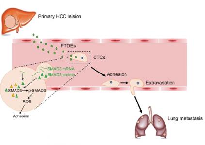 Oncogene:原发肿瘤来源的外泌体通过SMAD3调节CTC粘附促进肝癌转移