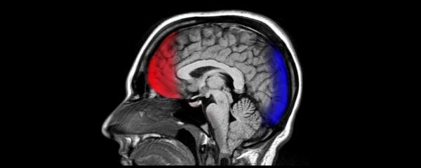 血液中的外泌体用于检测创伤性脑损伤