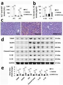 浙江大学医学院:AMSC衍生的外泌体减少巨噬细胞中TXNIP / NLRP3炎性体激活来减轻急性肝衰竭