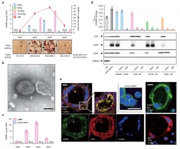 Nature:细胞外膜泡RANK参与骨吸收和形成