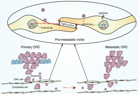 【Nature子刊】南方医大梁莉组:癌症外泌体miR-25-3p诱导血管通透性和血管生成促进转移前生态位形成