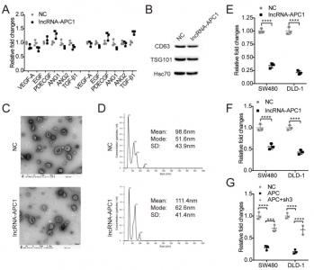【JCI】中山大学肿瘤医院谢丹/徐瑞华组:lncRNA-APC1减少外泌体产生抑制结直肠癌进展