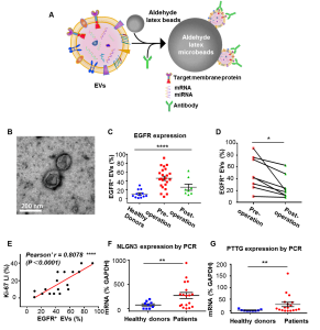 [Theranostics]国家纳米科学中心:微球富集联合流式细胞术的血清细胞外囊泡检测用于胶质瘤无创诊断