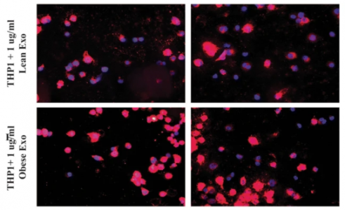 【新发现】脂肪细胞来源细胞外囊泡中的miRNA在体内阻碍胆固醇的清除