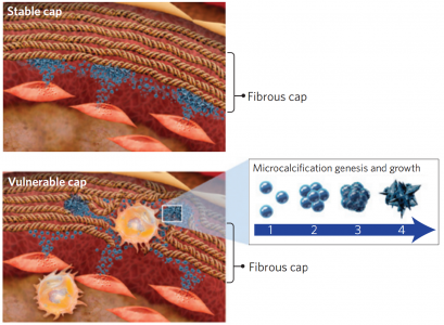 Nature materials: 细胞外膜泡介导动脉粥样硬化斑块中微钙化的发生和发展