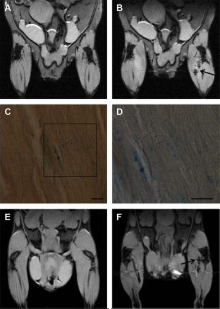 纳米材料标记外泌体的新方法可用磁共振进行体内检测
