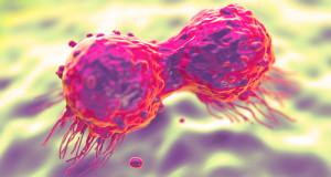 Anal Chem:乳腺癌外泌体蛋白质组的串联质谱分析