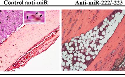 Cancer Research:骨髓MSC来源的外泌体促进早期乳腺癌休眠