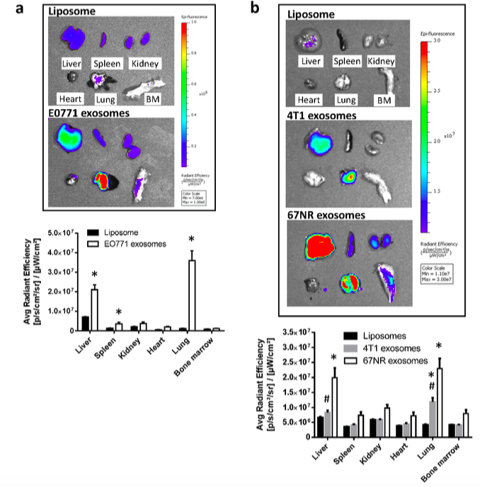 Cancer Research:乳腺癌外泌体在促转移过程中的生物功能