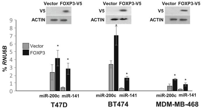 吉林大学第二医院&阿拉巴马大学伯明翰分校:FOXP3调控的miR-200可作为乳腺癌转移标志物