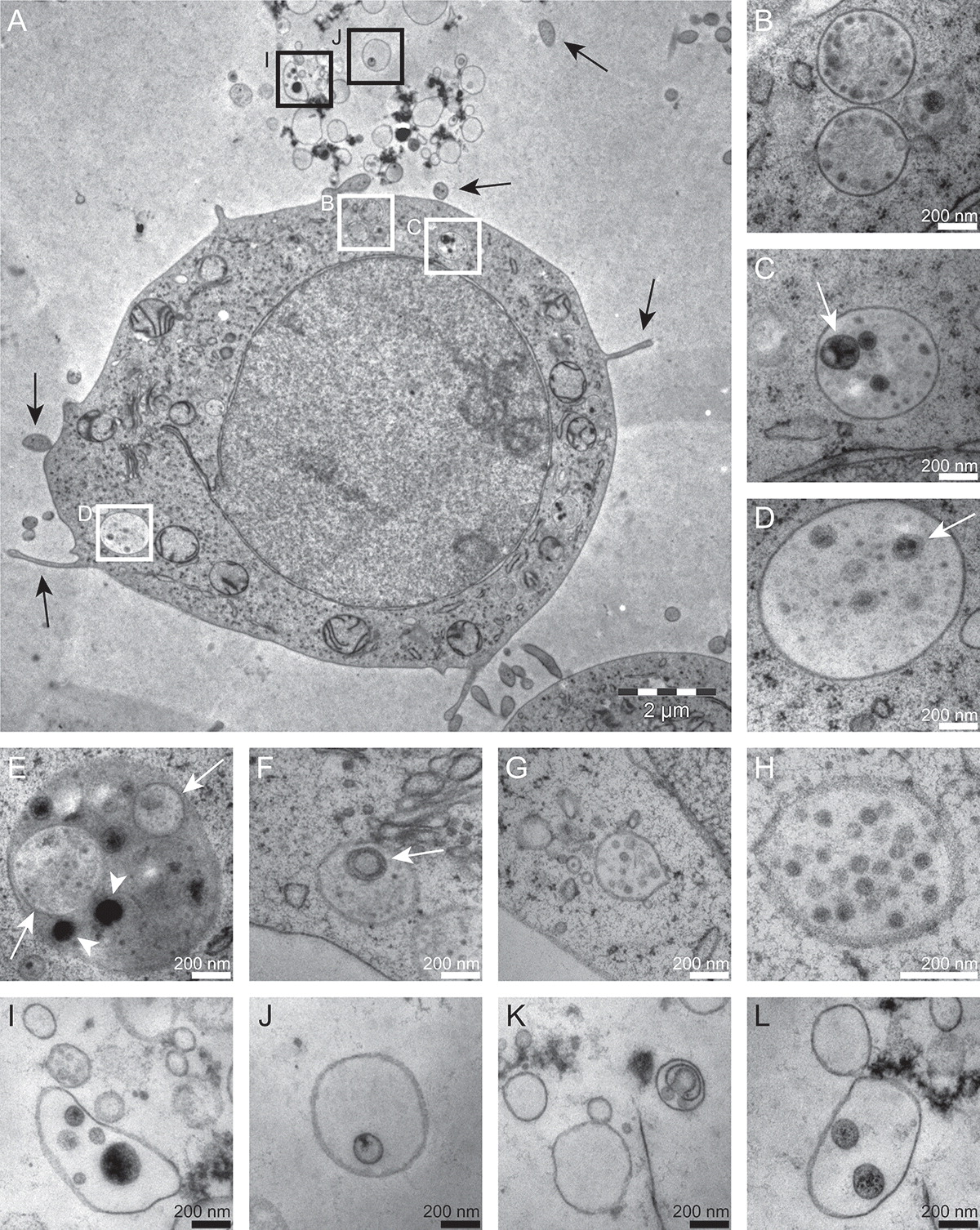 同类细胞分泌的外泌体具有各种不同形态 | 你电镜打出来的外泌体长啥样?