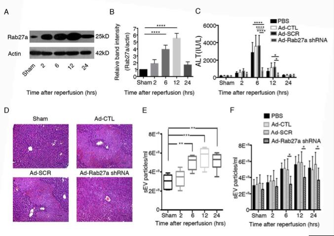 肝脏缺血再灌注损伤中IRF1-Rab27a促进细胞外膜泡分泌并通过EVs表面的氧化磷脂加重肝脏损伤