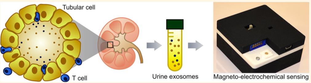 iKEA————一种基于外泌体非侵入性检测肾移植排斥反应的新方法