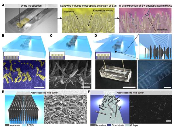 【内附视频】日本科学家开发出一种纳米线装置可高效检测尿液细胞外膜泡的miRNAs成分以诊断癌症