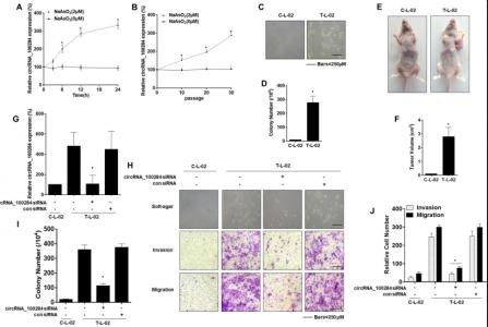 南京医科大学研究人员发现亚砷酸盐诱导的细胞分泌外泌体circRNA 加速肿瘤细胞周期并促进正常细胞的恶性转化