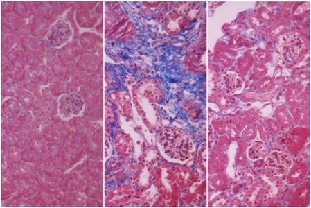 Fresenius Medical Care在慢性肾病中实现纳米细胞外囊泡应用的临床前突破