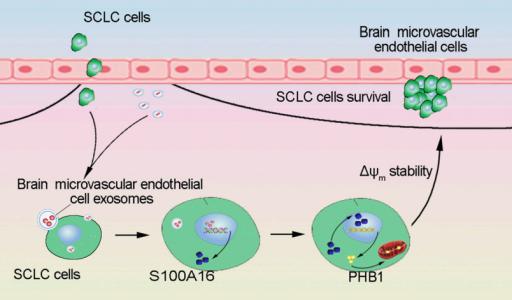 中国医科大学:脑微血管内皮细胞外泌体介导小细胞肺癌细胞的脑转移
