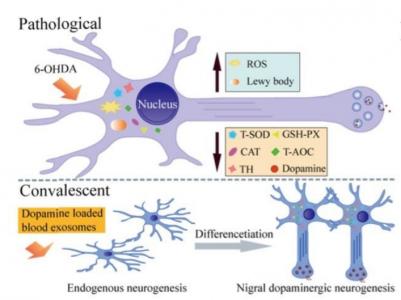 血液外泌体装载多巴胺直达大脑 用于帕金森病的治疗