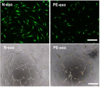 同济大学王凯/段涛组:先兆子痫患者的外泌体向内皮细胞递送sFlt和sEng蛋白诱导血管功能障碍 | Hypertension