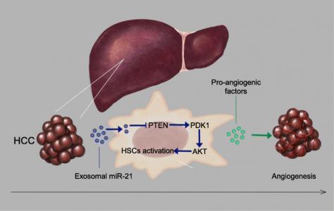 南京医科大学施晓雷、黄剑飞课题组:肝细胞癌来源的外泌体miRNA-21促进成纤维细胞向CAF细胞转化