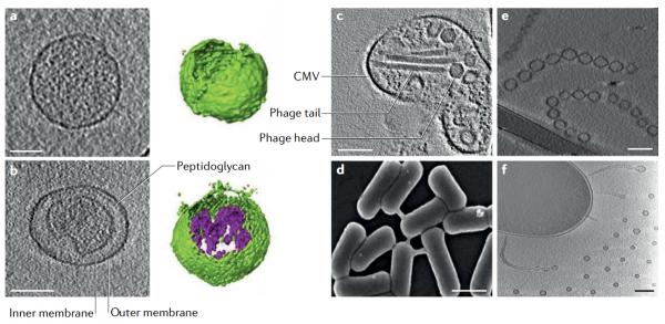 细菌膜囊泡的类型和形成机制  Nature Reviews Microbiology