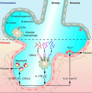 Immunity:钱友存组发现失调的肺共生菌通过外膜囊泡调控IL-17B的表达促进肺纤维化病理发生新机制